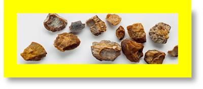 kidney stones symptoms kidney stones causes of kidney stones symptoms kidney with stones images kidney with stones from energy drinks coffee and kidney stones beer and kidney stones alcohol and kidney stones kidney stones blood in urine kidney stones back pain location kidney stones bleeding kidney stones coffee vitamin c kidney stones reddit kidney stones diagnosis is stones in kidney dangerous symptoms of kidney stones types of kidney stones causes of kidney stones