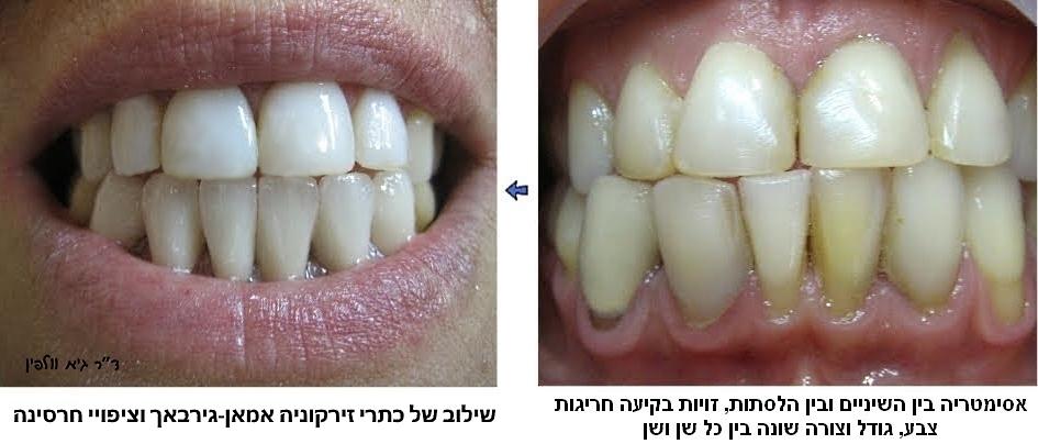 """שיקום הפה ואסתטיקה דנטלית, ד""""ר גיא וולפין, smile design, זירקוניה אמאן-גירבאך"""