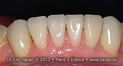 Apres / after - Cas de réalisation de facettes de céramique / dental veneers. Docteur Eric Hazan, chirurgien-dentiste / dental surgeon, Paris 16, France