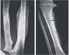 X-ray in Hypervitaminosis A