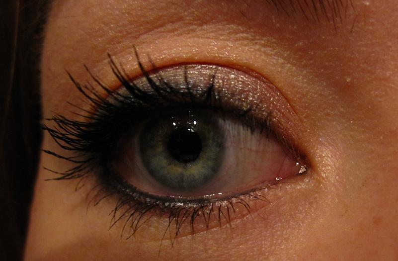 Lélimination des sacs sous les yeux sans opération