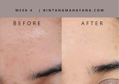 before-after-avoskin-miraculous-retinol-toner