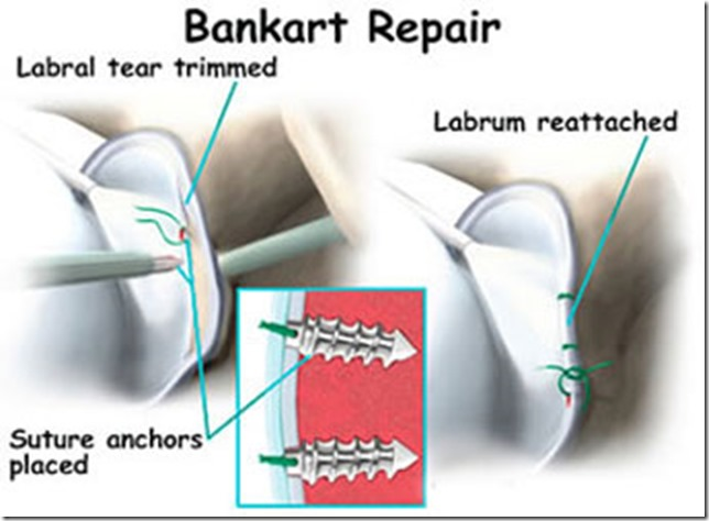 bankart-repair-diagram