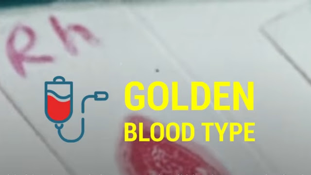Golden blood, rarest blood on earth