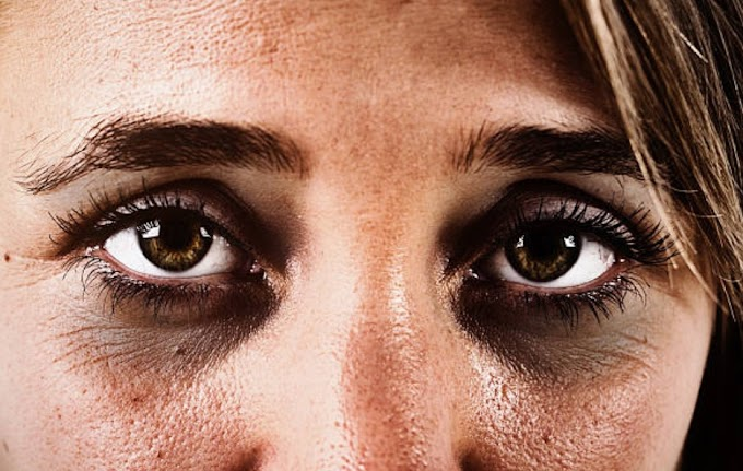 How to use turmeric to treat dark circles?
