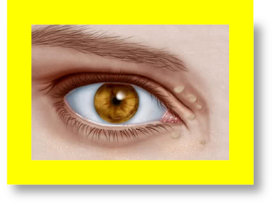 xanthelasma removal xanthelasma treatment xanthelasma eyelid xanthelasma around eyes xanthelasma associated with xanthelasma and heart disease xanthelasma and hypothyroidism what is the treatment for xanthelasma xanthelasma causes xanthelasma differential diagnosis xanthelasma eyelid images xanthelasma histology xanthelasma hypothyroidism xanthelasma images