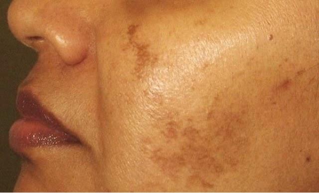 La pigmentación de la piel sobre la cabeza