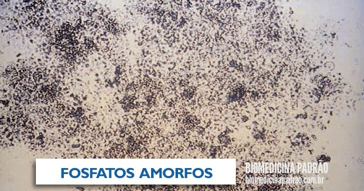 fosfatos amorfos