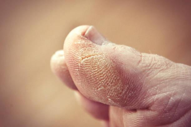 تشقق القدمين وكيفية علاجه طبيعيا بالطرق السهلة والسريعة