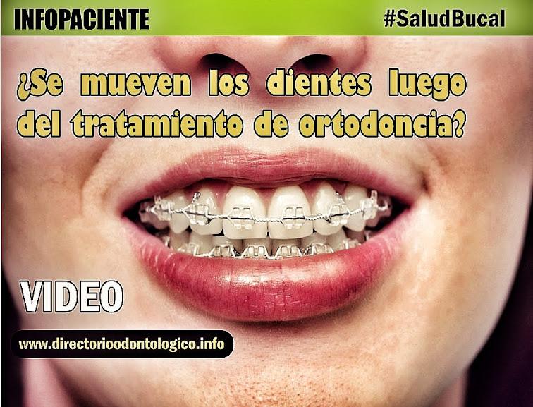 retencion-ortodoncia