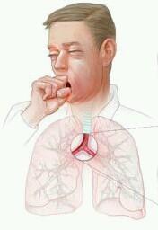 Obat Herbal Untuk Mengobati Penyakit Bronkitis