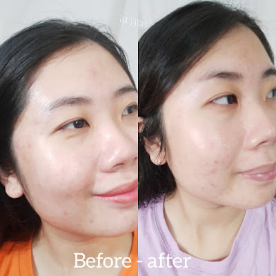 before-after-pakai-skincare-avoskin