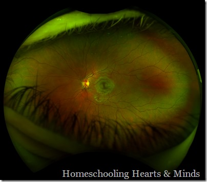 Photo photograph of the inside of the human eye