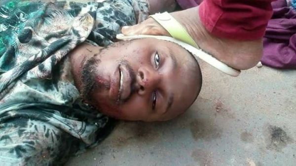 BREAKING NEWS! 'E-money' Killed DuringOperation (Graphic Photos Included)