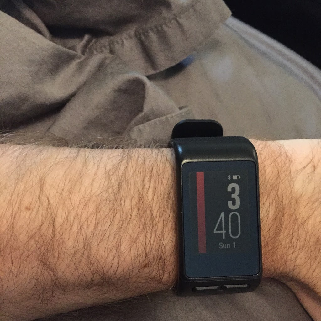 My Regular Band Is Mive Sticks Out The Other Side Of Arm Way Longer Than Th Vivosmart