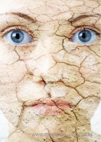 kulit kering, cara atasi kulit kering