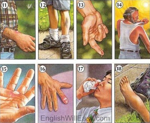 Picture Dictionary / People /  Symptoms, Injuries