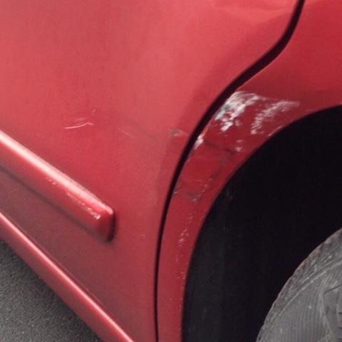 Kratzer vom Autounfall