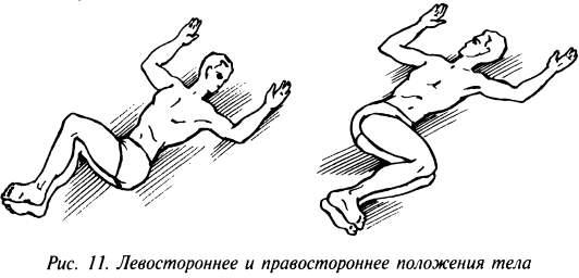 Левостороннее и правостороннее положения тела
