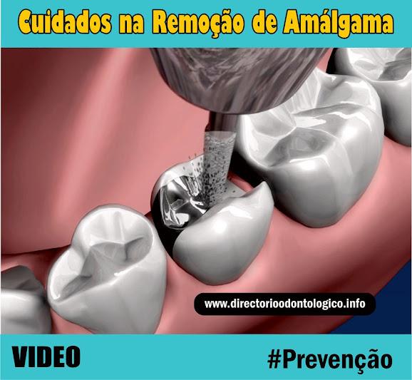 Prevenção Amálgama