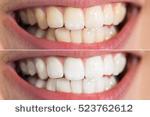 perawatan gigi alami,cara merawat gigi alami,merawat gigi secara alami,merawat gigi berlubang secara alami,merawat gigi dengan bahan alami,merawat akar gigi secara alami,cara merawat gigi putih alami,mengobati gigi berlubang alami,mengobati gigi ngilu alami,perawatan gigi putih alami,cara merawat gigi berlubang secara alami,cara merawat gigi retak secara alami,cara merawat gigi keropos secara alami,mengobati gigi sakit alami