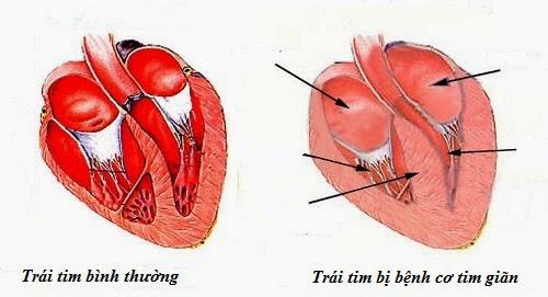 Nguy cơ tử vong do bệnh cơ tim giãn nở