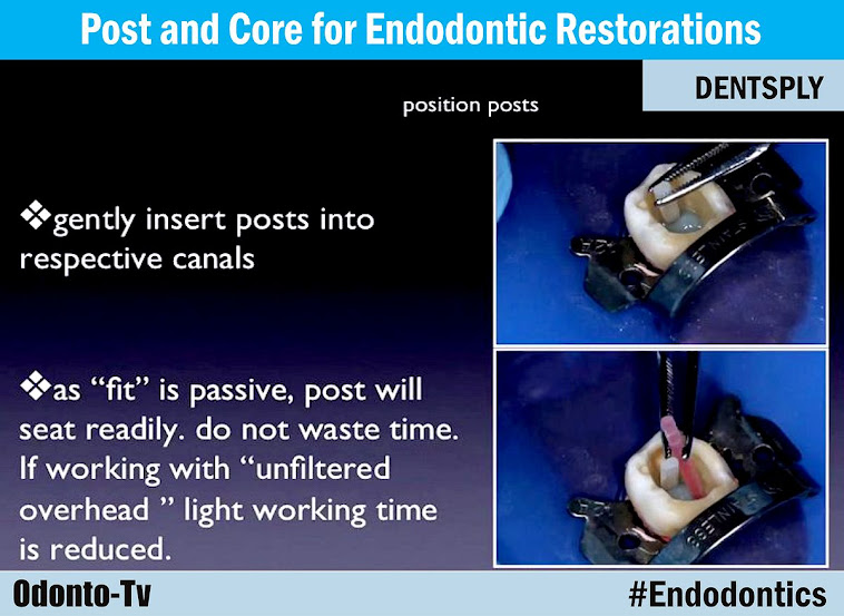 endodontic-restorations