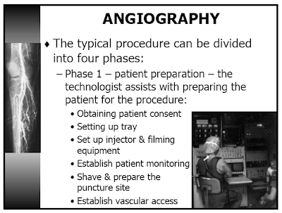 Angiography (or Arteriography)