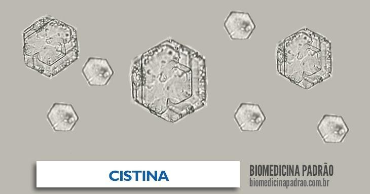 cistina
