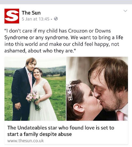 Image description: The Sun Facebook page, 5 January 2016. Steve and Vicky Carruthers on their wedding day. Text: I don't care if my child has Crouzon or Downs Syndrome or any syndrome. We want to bring a life into this world and make our child feel happy, not ashamed, about who they are.