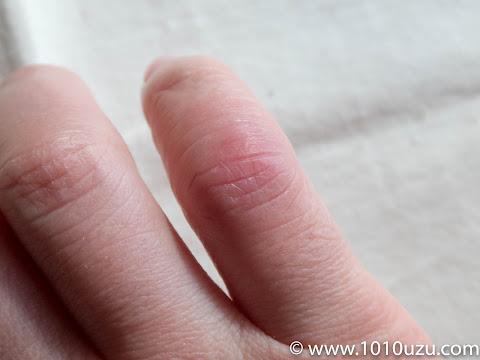 しもやけで赤く腫れた手