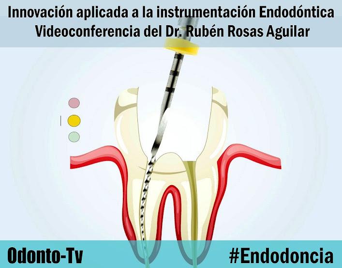 instrumentacion-endodoncia