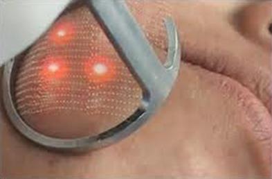 dermacosmeticavip: Laser CO2 Fraccionado