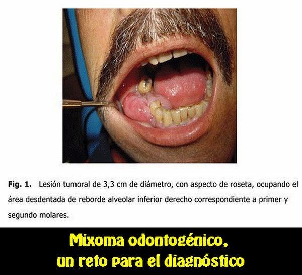 mixoma-odontogenico