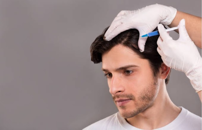 PRP treatment successful for hair loss