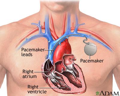 Pacemaker.jpg