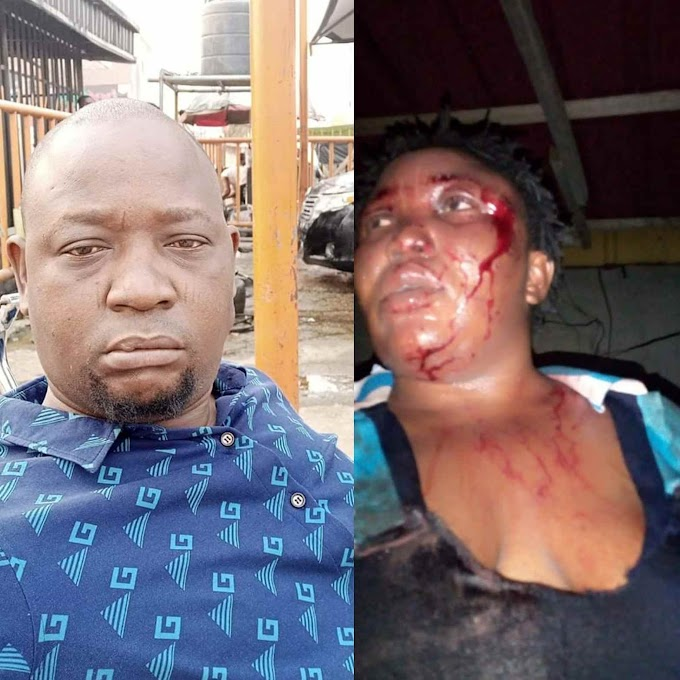 Man arraigned in court for posting wife's battered face on Facebook