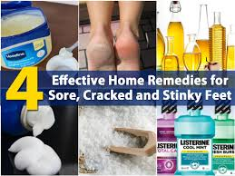 Crack heels home remedy cream | in 3 days reduce cracked heels completely