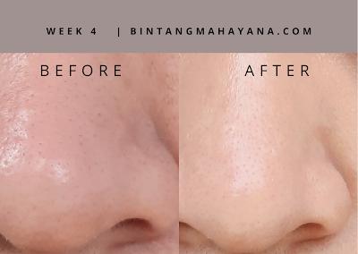 hasil-1-bulan-avoskin-miraculous-retinol-toner-bintangmahayana-com