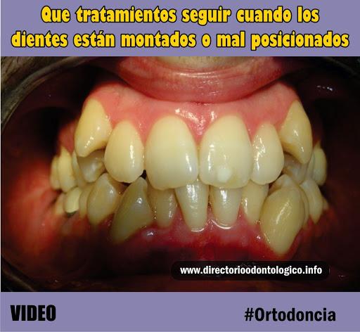 malposición.dentaria