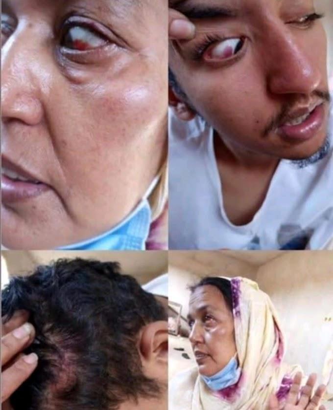 Agentes marroquíes allanan la casa de una activista saharaui y destrozan su interior, torturan a la familia y atacan a su madre.