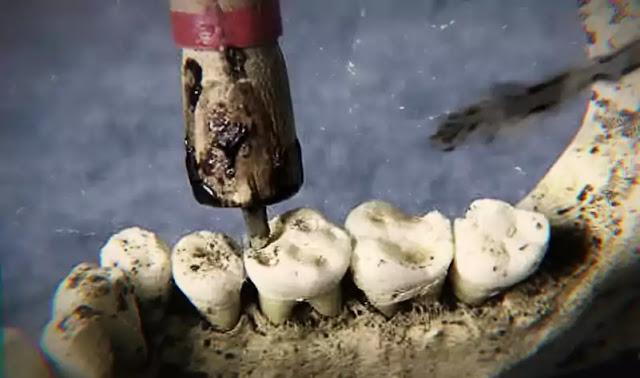 ancient egypt dental surgery