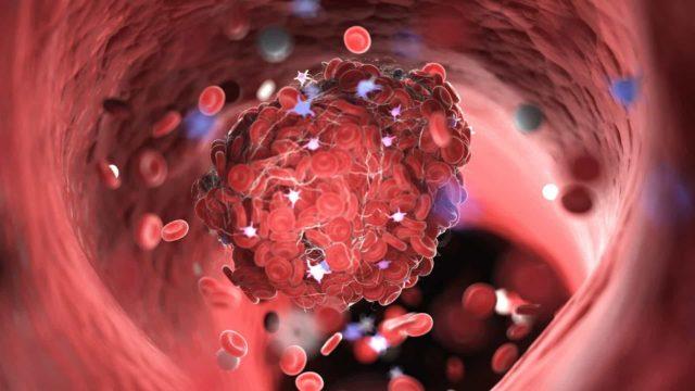 Conheça os sintomas de um coágulo sanguíneo