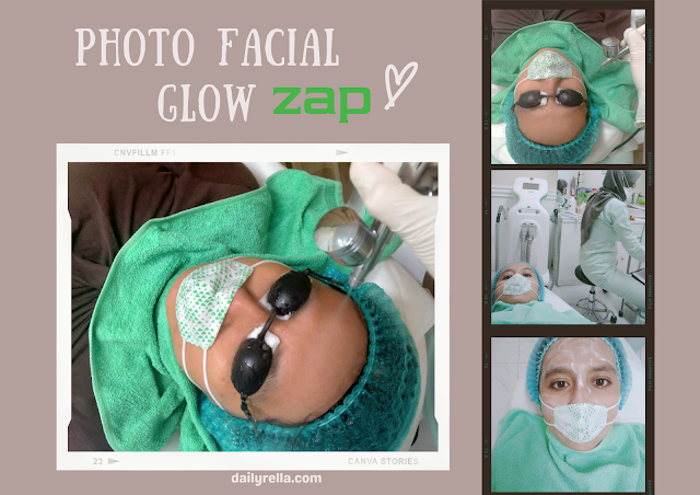 photo facial glow ZAP