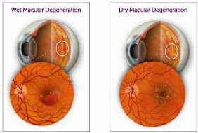 Vitamin Mata Untuk Gangguan AMD Degenerasi Makula