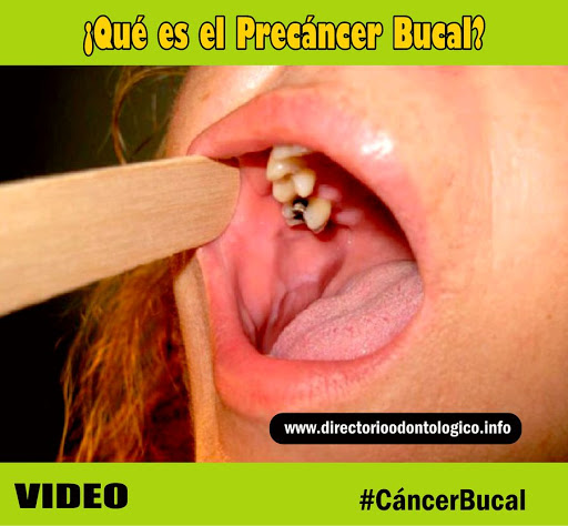 precancer-bucal