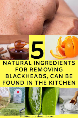 Removing Blackheads with Aloe Vera, Removing Blackheads with Baking Soda, Removing Blackheads with Cinnamon and Honey, Removing Blackheads with Green Tea, Removing Blackheads with Orange Peel