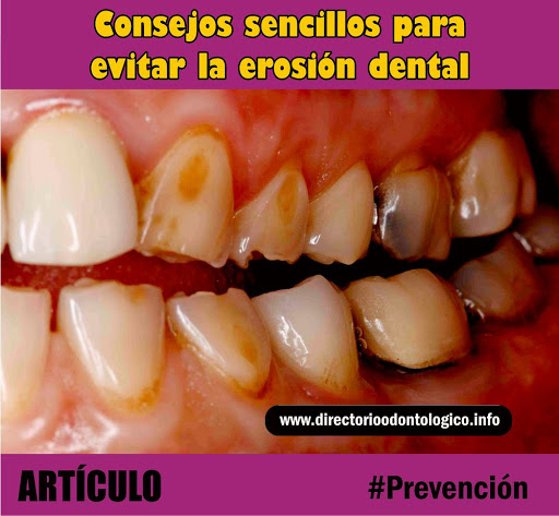 erosión-dental