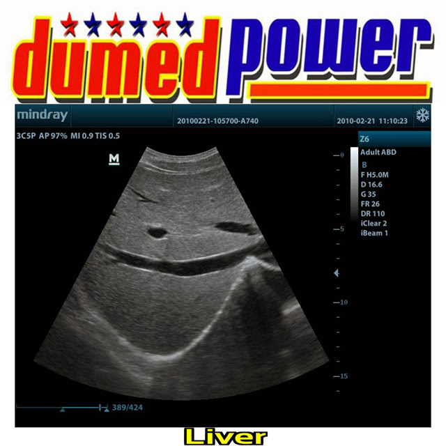 Mindray-Z6-Liver-A-Well-Balanced-Ultrasound-Made-in-China