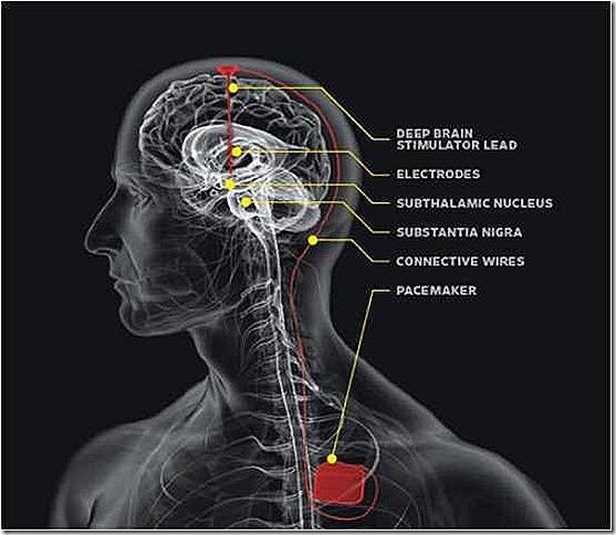 Brain-Pacemaker
